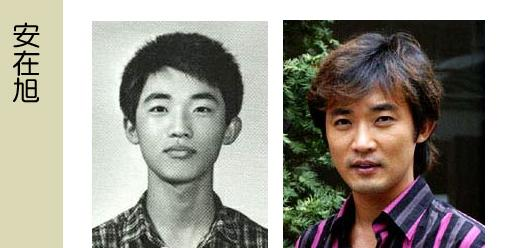 Korean Celebrities Korean Plastic Surgery - Ahn Jae Wook