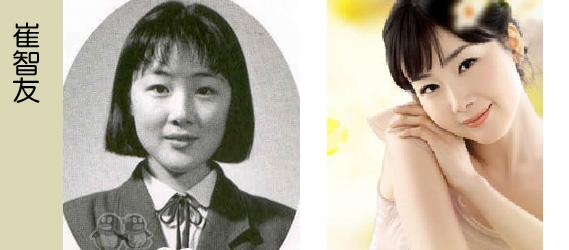 Korean Celebrities Korean Plastic Surgery - Choi Ji Woo