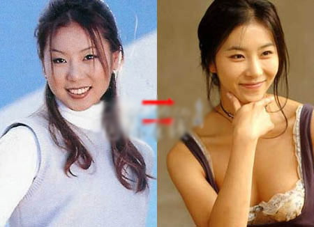 Korean Celebrities Korean Plastic Surgery - Han Eun Jung