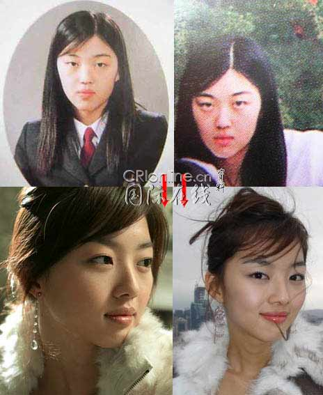 Korean Celebrities Korean Plastic Surgery - Jang Seo Hee