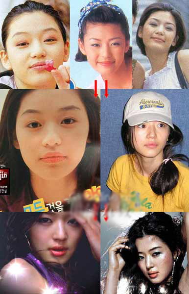 Korean Celebrities Korean Plastic Surgery - Jeon Ji Hyun
