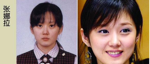 Korean Celebrities Korean Plastic Surgery - Jiang Na Ra