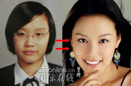 Korean Celebrities Korean Plastic Surgery - Kim Yoo Jung