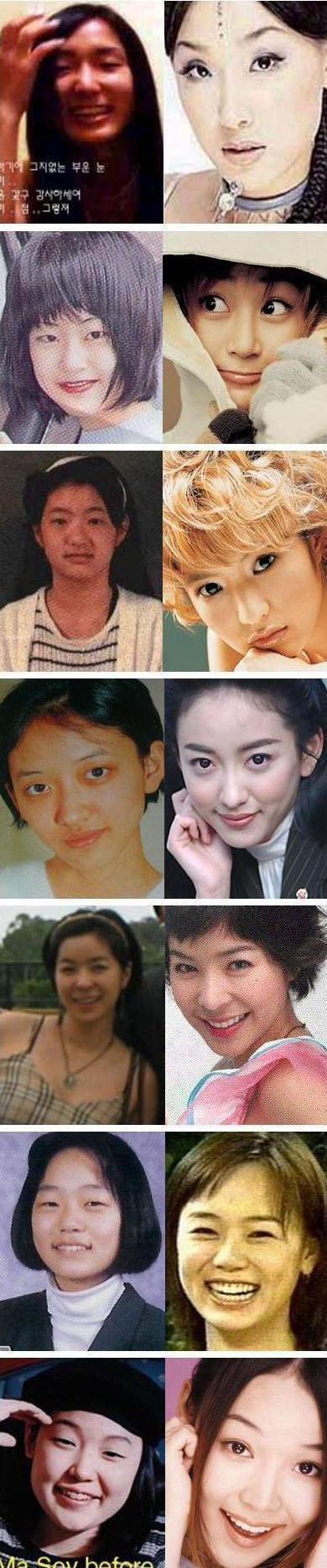 Korean Celebrities Korean Plastic Surgery - Korean Actresses
