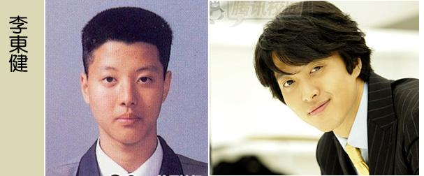 Korean Celebrities Korean Plastic Surgery - Lee Dong Gun