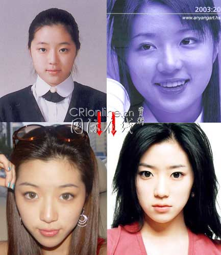Korean Celebrities Korean Plastic Surgery - Park Han Byul