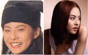 Korean Celebrities Korean Plastic Surgery - Park Ji Yoon