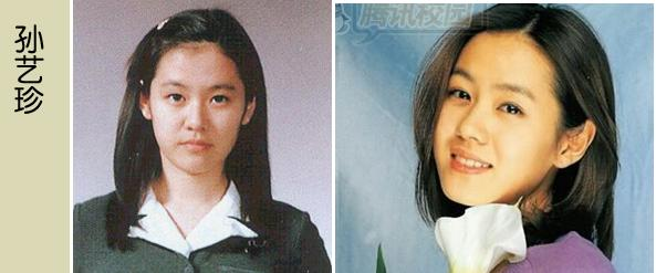 Korean Celebrities Korean Plastic Surgery - Son Ye Jin
