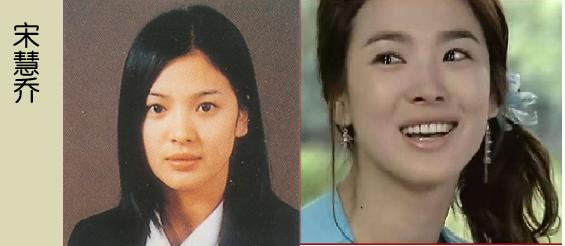 Korean Celebrities Korean Plastic Surgery - Song Hae Gyo